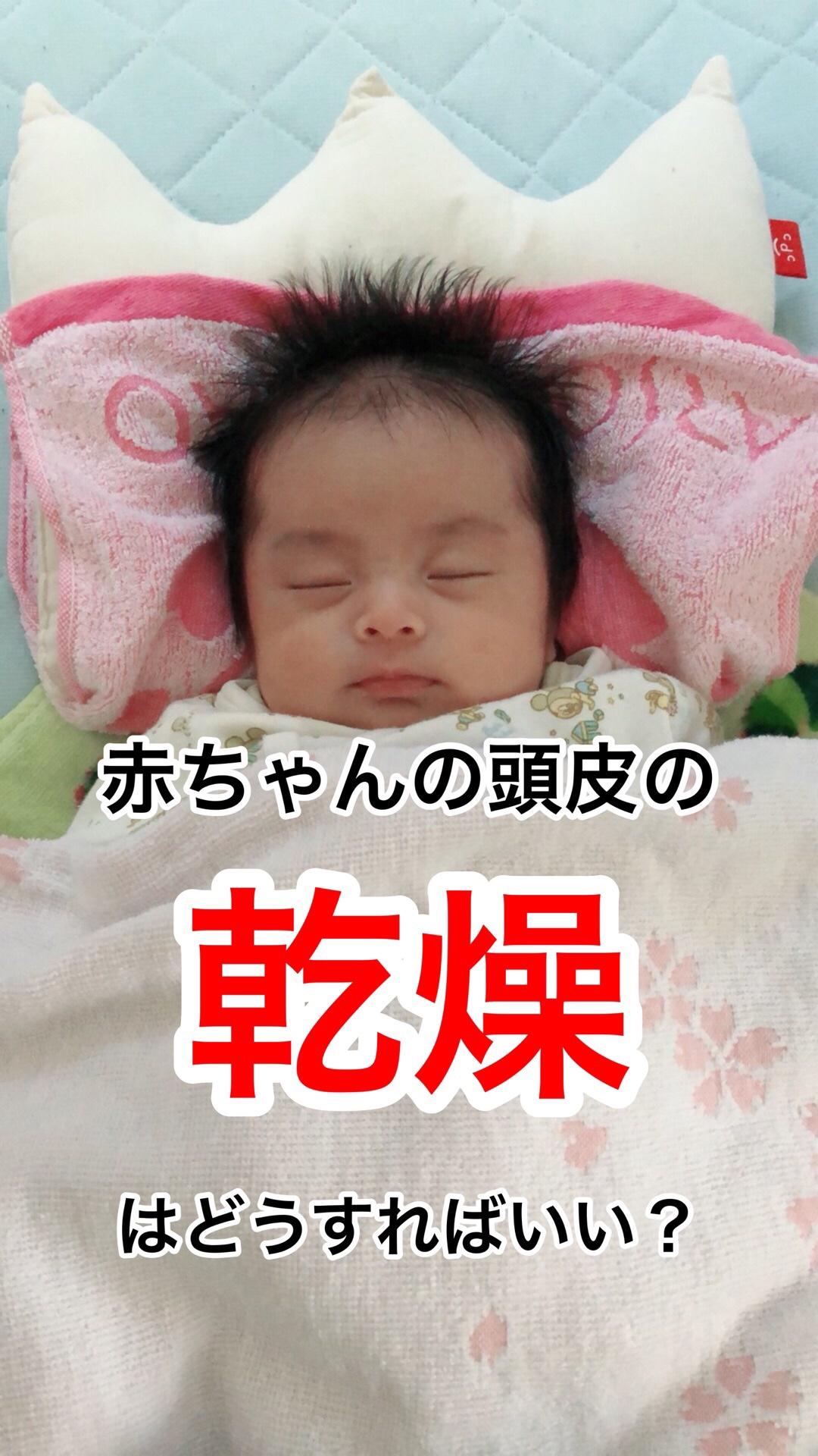 Baby scalp dry