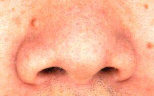 nosehair-cutter